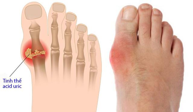 Lượng acid uric trong máu cao có thể gây ra bệnh Gout