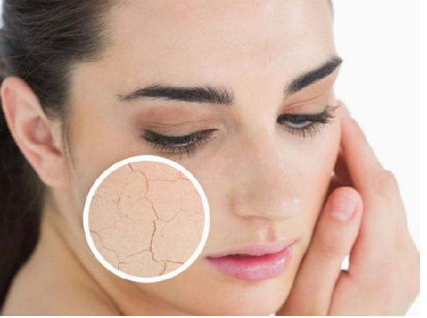 Làn da khô rát, dưỡng ẩm mà vẫn không có tác dụng