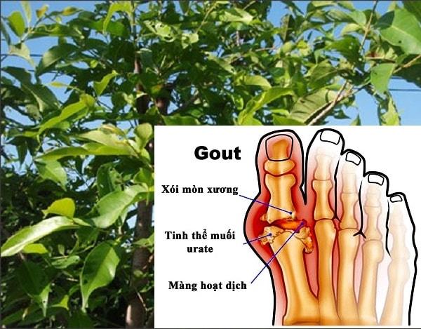Lá vối giúp phòng chống bệnh gout