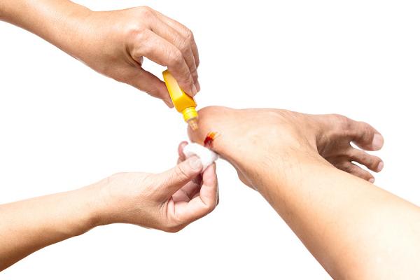 Thuốc tím sát trùng còn giúp sát trùng vết thương rất hiệu quả