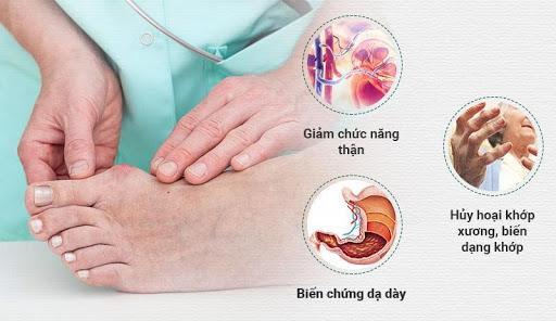 Bệnh gout không điều trị kịp thời sẽ gây ra nhiều biến chứng