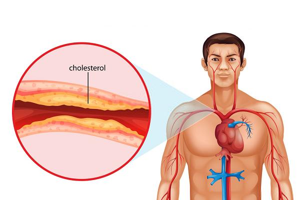 HDL – Cholesterol có vai trò quan trọng trong sự trao đổi chất và vận chuyển máu đi các cơ quan
