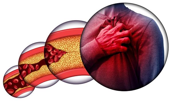 Hàm lượng LDL Cholesterol trong máu tăng cao sẽ gây ra các bệnh nguy hiểm như xơ vữa động mạch, mỡ máu