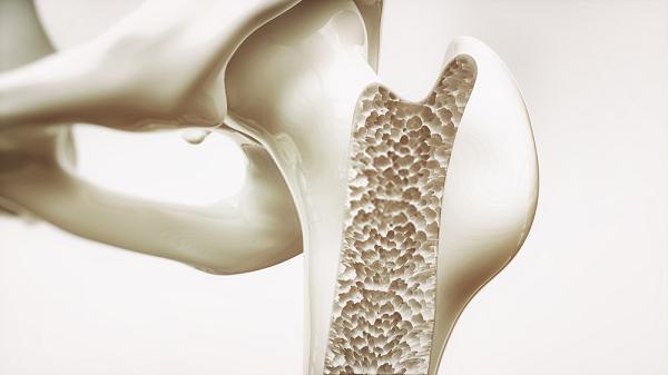 Loãng xương có lẽ là sự biểu hiện rõ ràng nhất của việc thiếu canxi ở người trung niên.