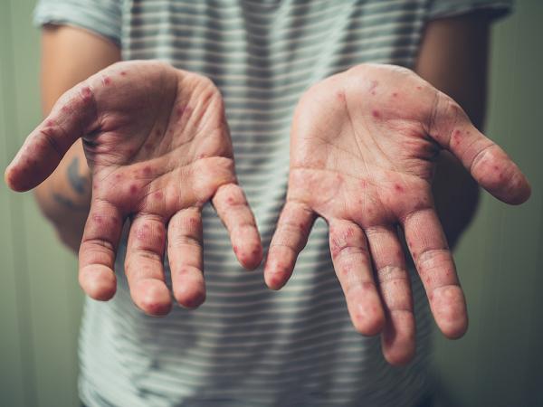 Viêm da do sử dụng nước bị nhiễm sắt