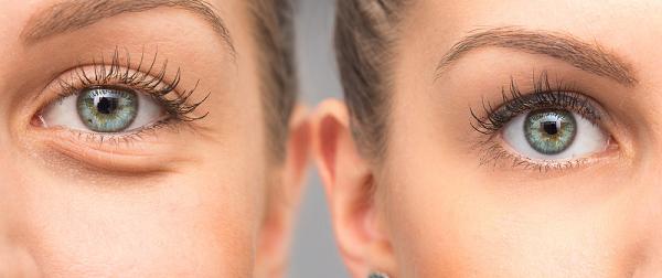 Uống trà hoa cúc thường giúp cải thiện đôi mắt của bạn